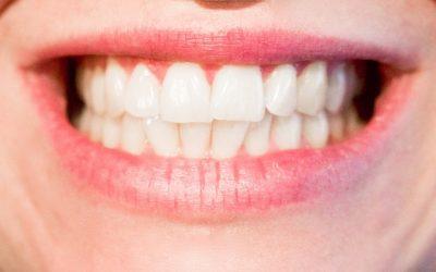 Los beneficios de la Ortodoncia en Fuengirola